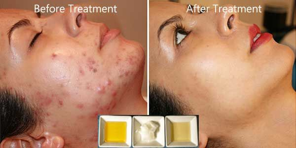 Do this treatment 2 times only and say goodbye to all pimple, acne and scars on your face