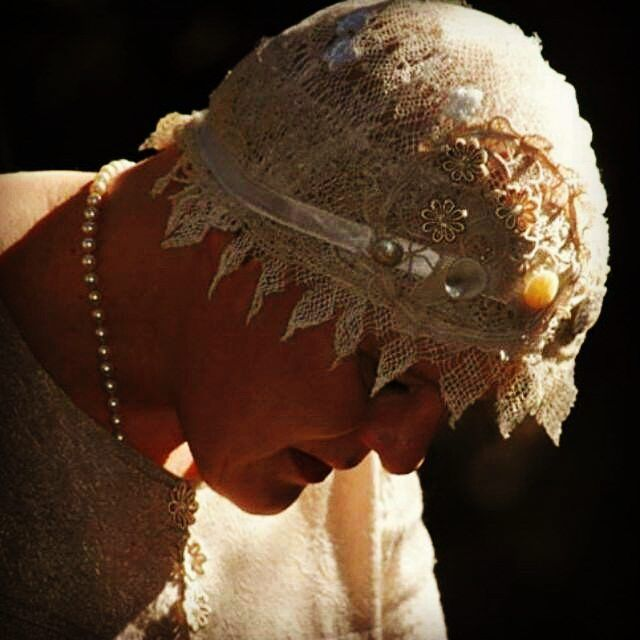 A throw back pick! Me with an aknitak head doily #aknitakheaddoily #alopecia #feelingpretty #boldisbeautiful