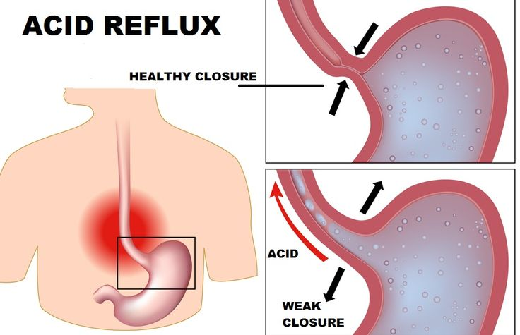 "Acid Reflux Off The Grid    In this high-stress world, you probably know someone who suffers from G.E.R.D. (Gastroesophageal Reflux Disease). ""Gastro-"" refers to your stomach; ""-esophageal"" refers to the tube that runs from it to your throat. Acid ""reflux"" is essentially acid that escapes the st"