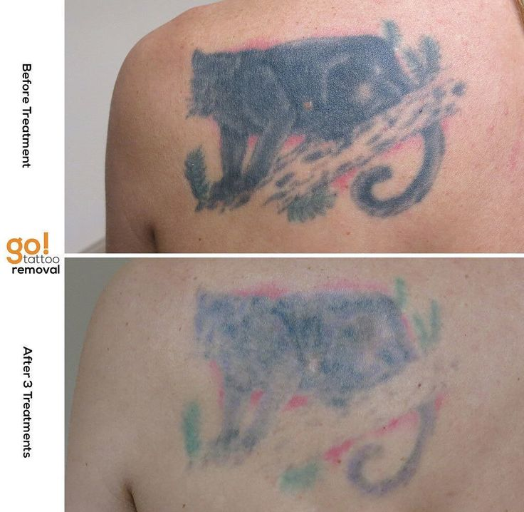 728 best tattoo removal in progress images on pinterest for Tattoo removal maine