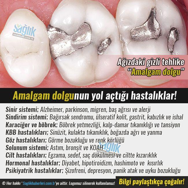 Ağızdaki gizli tehlike: Amalgam dolgu‼️   Dünyanın birçok ülkesinde amalgam dolgu yasak. Ancak Türkiye'de diş hekimlerinin çoğu bu çeşit dolguyu tercih ediyor. #sağlık #saglik #sağlıkhaberleri #health #healthnews @saglikhaberleri