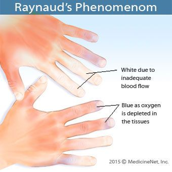 Raynaud's phenomenon symptoms and signs include the fingers turning white after exposure to temperature changes or emotional events. Read about treatment, causes, and diagnosis, plus, see pictures.