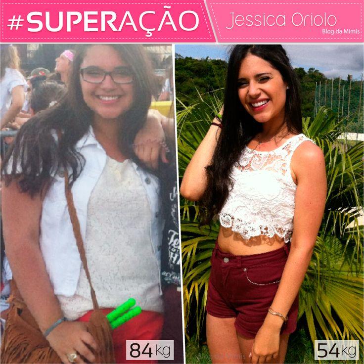 Superação Jessica Oriolo - Blog da Mimis . Veja a historia linda e o antes e depois da Jessica!