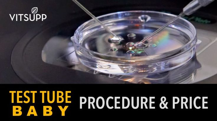 Test Tube Baby / IVF: Procedure, Price, Success Rate, And Risks