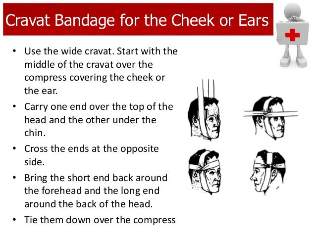 cravat bandage A cravat, or triangle bandage, is a basic first aid item that can be used as both a bandage and a sling nols recommends keeping a few of these in a personal first aid kit.