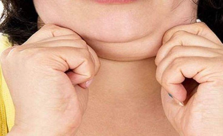 Saiba como eliminar a gordura da papada