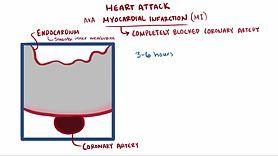 Archivo:Heart attack video.webm