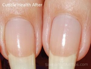 After Cuticle Health Nail Oil 300x229 WHITE SPOTS IN NAILS   Sues Pure Nail Oil™ Challenge