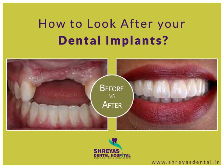 Perfect your smile with natural-looking dental implants in Ahmedabad..! Visit Shreyas Dental hospital and get an optimal solution for your lost teeth in 3 days. #DentalImplant #Teethin3Days