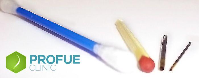 A FUE hajbeültetési eszközök méreteit szemléltető kép Forrás: http://profueclinic.com/a-fue-hajatultetesi-profue-hajbeultetesi-modszer/