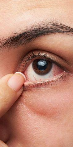 7 Hausmittel gegen trockene Augen, die wirklich helfen