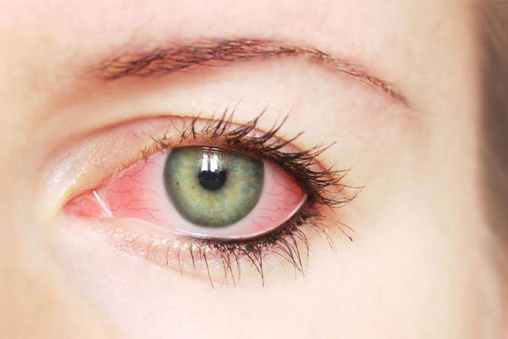 عيناك تكشف الكثير عن حالتك الصحية!