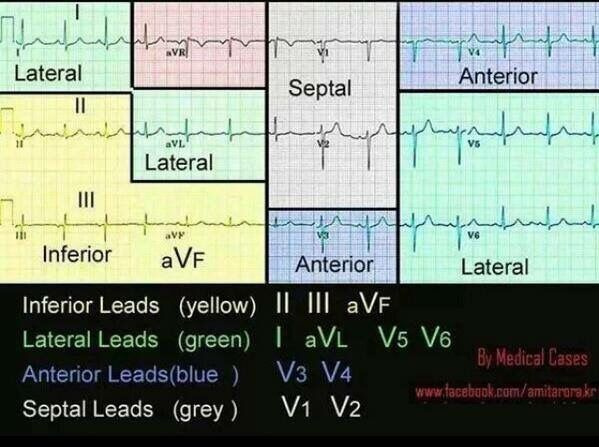 Learn to Read ECG IN 5 Minutes - YouTube