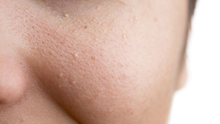 What those white spots are under your eyes and how to get rid of them