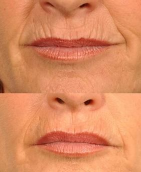 Laser, microdermabrasion and dermabrasion, as well as fillers can improve the deep lines. Before and after photos.