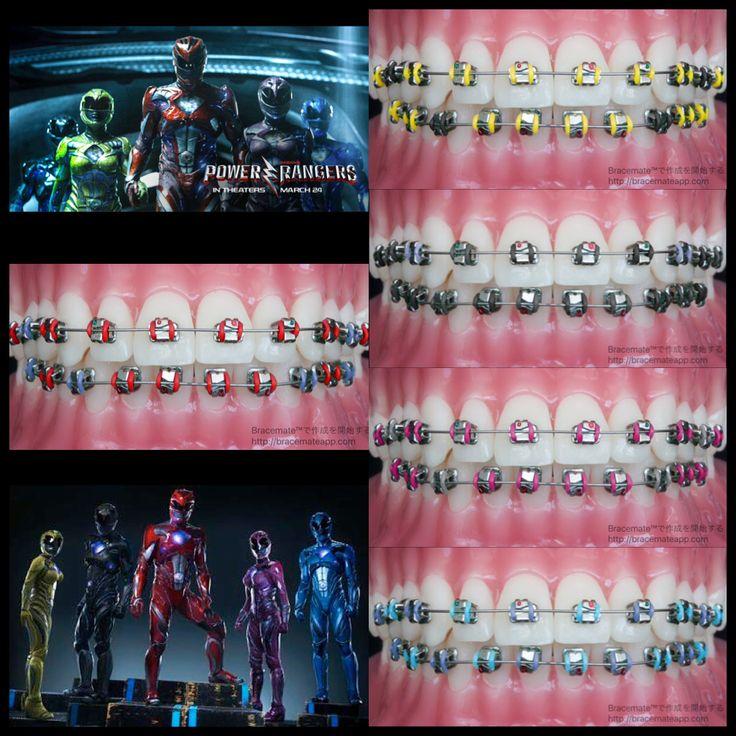 #powerrangers  #movies #movie #brackets #braces #orthodontics #orthodontist #ortodoncia #ortodoncista #ortodontia #ortodontista #kieferorthopäden #kieferorthopäde #braceson #frenos #frenillos #bracesjourney #bracesproblems #ортодонт #ортодонтия #zahnspange #aparelho #aparelhoortodontico #cosplay #dental #dentist #dentistry