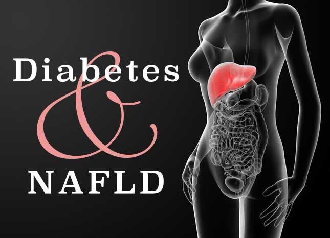 What You Need to Know about Diabetes and Nonalcoholic Fatty Liver Disease