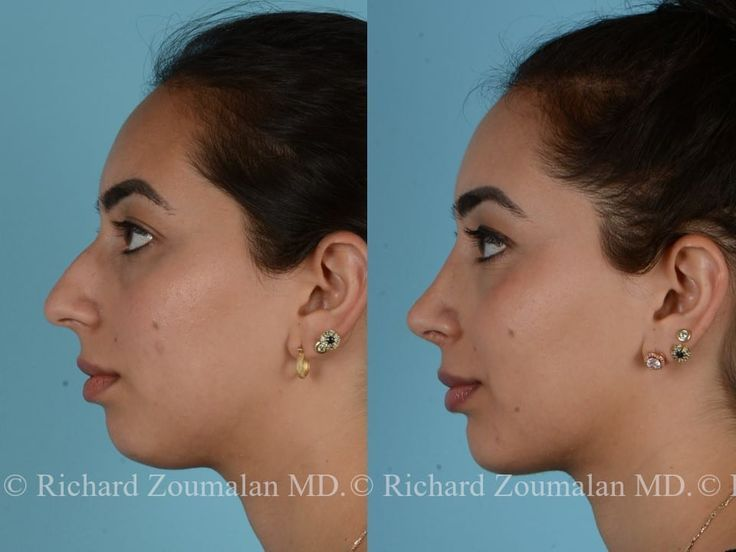 Rinoplastia Antes E Depois Richard Zoumalan With Images
