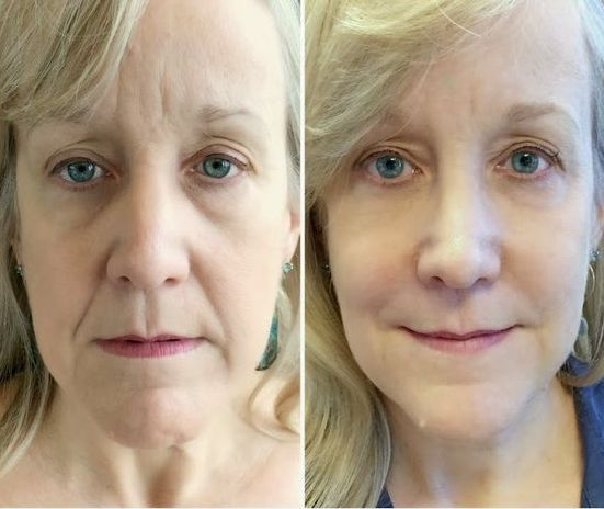 The Inner Secrets To Facial Yoga And Facial Workouts For Natural Facelifts