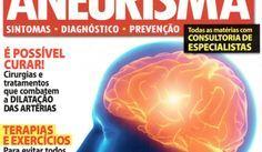 aneurisma cerebral, embolização, tratamento e aneurisma, clipagem, cirurgia cerebral
