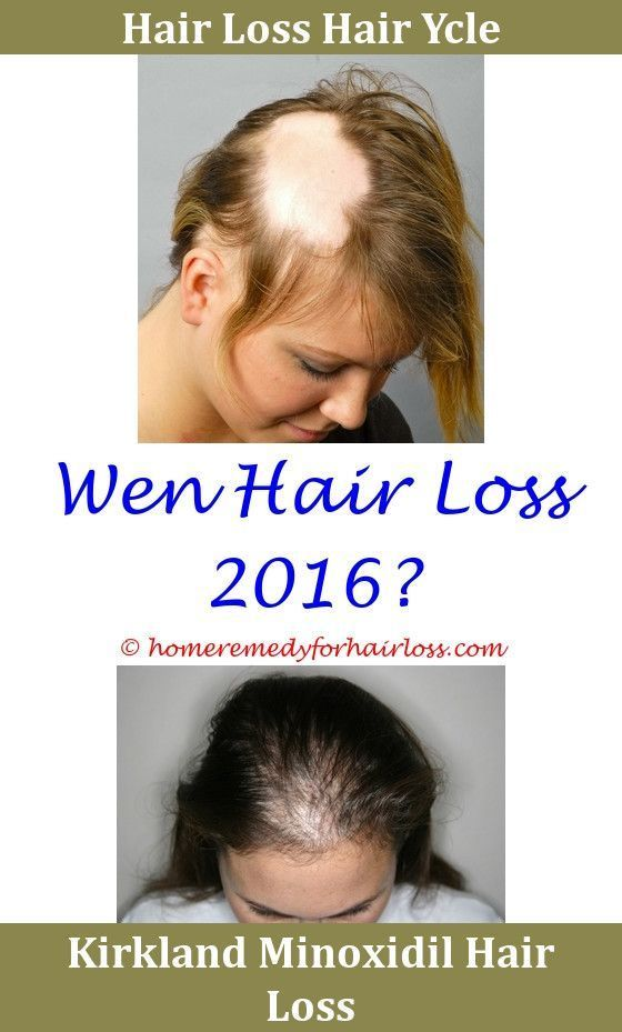 Another Word For Hair Losshair Loss Nyu Hair Loss Clinic Flax