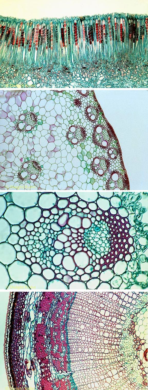 Microscopic plant cells. It all comes down to patterns.
