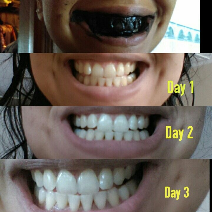 All About How To Make Your Teeth Whiter Without Strips Teeth