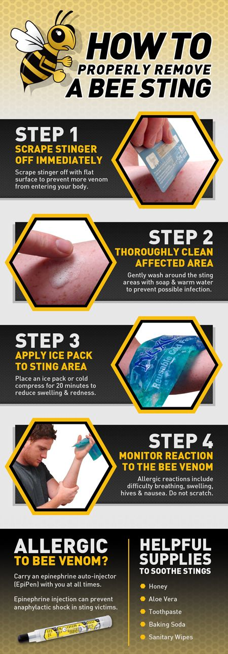 A visual guide for correctly treating a bee sting. Includes tips on soothing and preventing allergic reactions to bee venom. See full image at http://propacificbeeremoval.com/properly-remove-a-bee-sting/