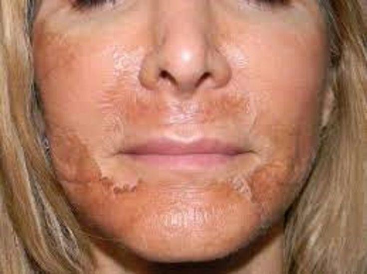 I posti ormonali sulla faccia che trattare