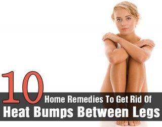 Top 10 Effective Home Remedies To Get Rid Of Heat Bumps Between Legs