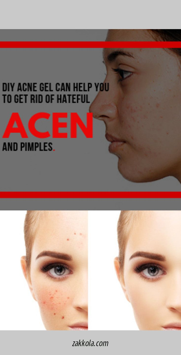 The best benzoyl peroxide products to treat acne. …