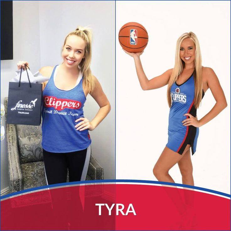 LA Clippers Spirit dancer, Tyra, visited Finesse Newport Beach for laser hair removal treatment!