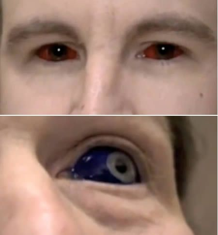 Eyeball  Tattoo done by 2 Cell mates in prison. They won't reveal how they did it but did say they were experimenting and that it was extremely painful. It's creepy and permanent