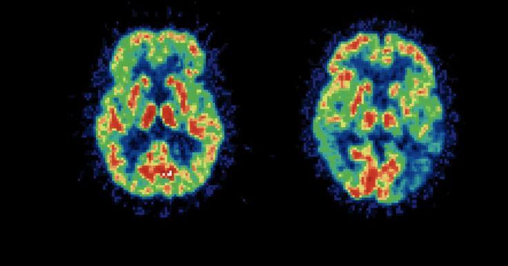 Tratamento da demência com corpos de Lewy. A demência com corpos de Lewy (substâncias que se acumulam no córtex cerebral) é um transtorno cerebral progressivo e fatal, para o qual não existe tratamento. Assim como o Alzheimer, uma condição estreitamente relacionada, o tratamento consiste em controlar os sintomas na tentativa de desacelerar a progressão da doença e melhorar a qualidade de ...