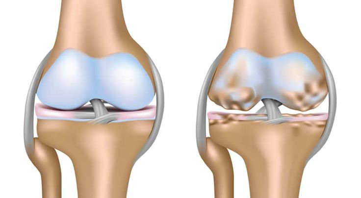 Osteoarthritis and several recipes for healing it