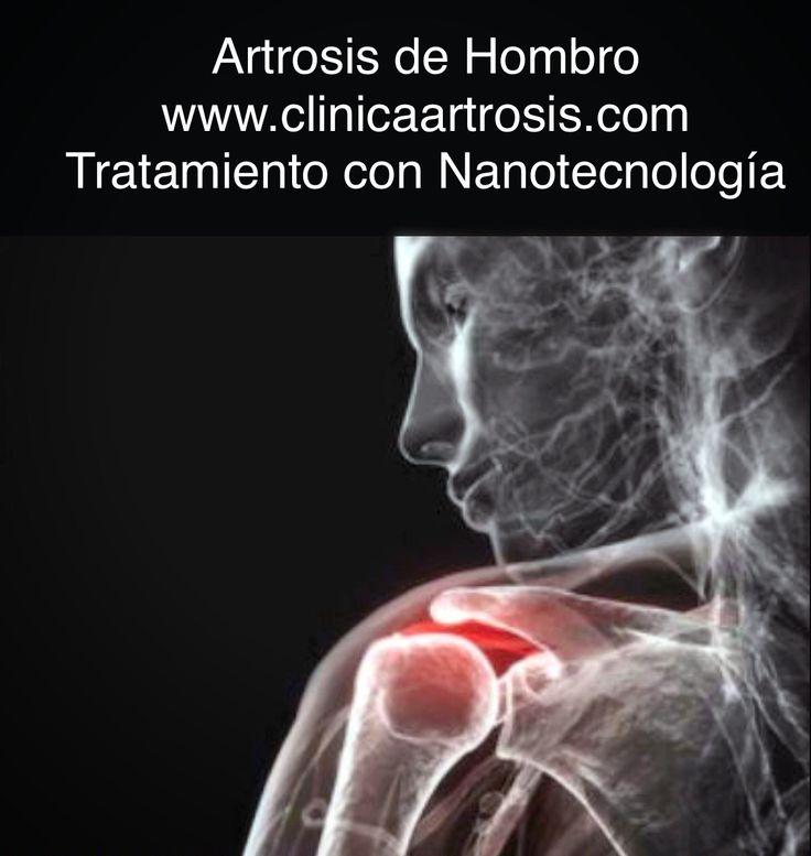 La artrosis de hombro es la degeneración de la articulación en la que se produce una pérdida del cartílago. Visítenos en www.clinicaartrosis.com PBX: 6836020. Bogotá - Colombia.