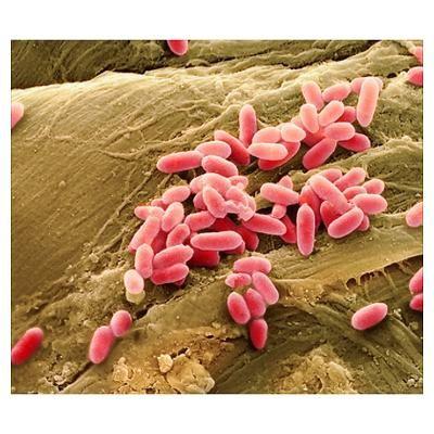 Pseudomonas aeruginosa bacteria, SEM