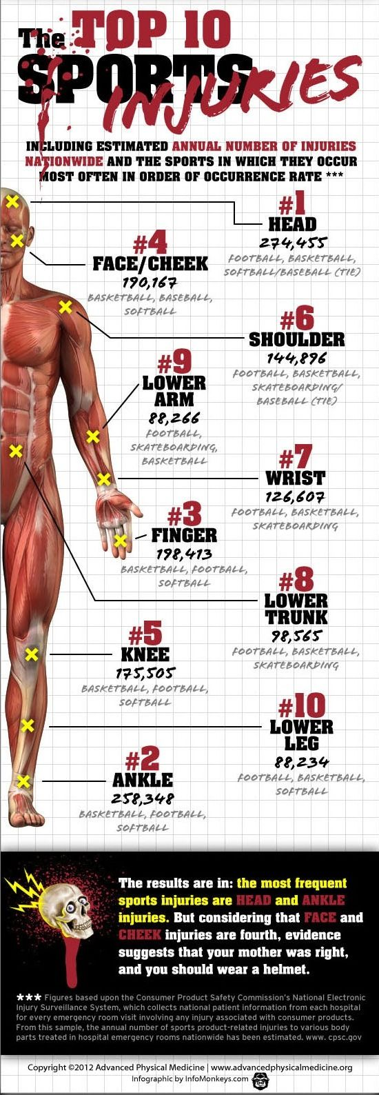 a look at common sports injuries Common sports injuries anyone who lives an active lifestyle, fueled by fitness, has experienced a period of inactivity because of injury  take a look at the list .