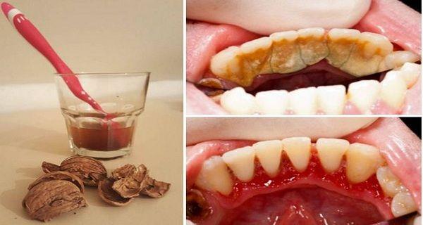 Vea como eliminar el sarro de los dientes en pocos minutos y con apenas 2 ingredientes naturales | Curiosidades, humor, rarezas, raras, noticias raras…cosasmasraras.com