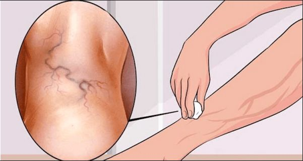 Varicose veins are something every woman despises as they make legs extremely unattractive. Moreover, they also cause pain and discomfort. That's why, in this article we've decided to help everyone and tell you how to get rid of varicose veins forever using one simple ingredient! Olive oil, and the entire method is inexpensive and easy. Cypress oil is one of the most powerful natural remedies for vein problems. It stimulates circulation, and improves the function of your circulatory system…