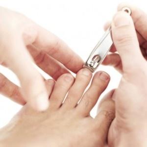 Regelmässiges Nägel schneiden schützt for Nagelerkrankungen.