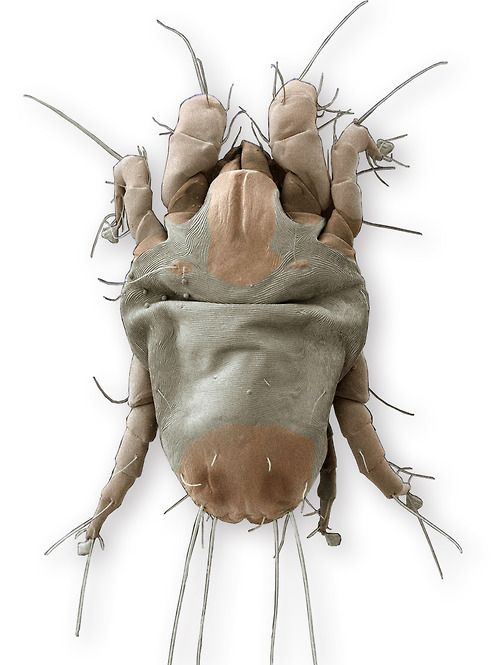 A scanning electron microscope image of an American house dust mite. Source: Irreversible Evolution? Dust Mites Show Parasites Can Violate Dollo's Law(Discover Magazine).