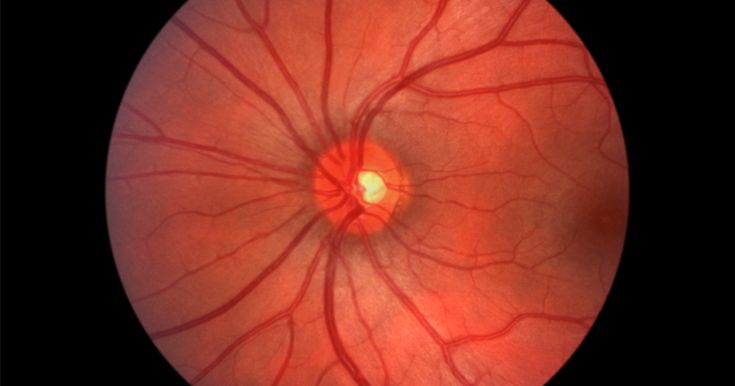 Find out the causes and treatments of optic neuritis.