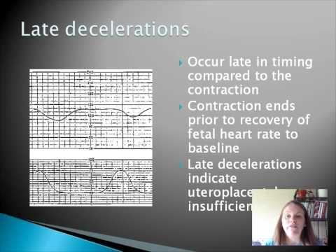 Basic Fetal Heart Rate Monitoring