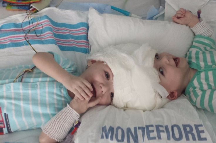 Forty medical experts at a New York hospital Friday successfully separated conjoined twins attached at the head after a 20-hour procedure.