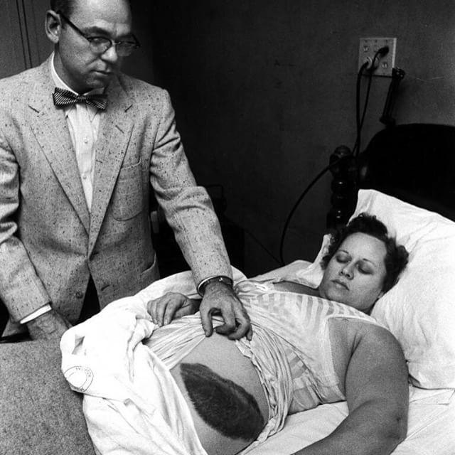 Dr. Moody Jacobs mostra um enorme hematoma no lado esquerdo de sua paciente Ann Elizabeth Hodges que foi atingida por um meteorito em 1954  ela foi a única pessoa da história conhecida e registrada a ser comprovadamente atingida por um meteorito. E não ela não ganhou super poderes ou algo do tipo.  O caso ocorreu na cidade de Sylacauga Alabama no dia 30 de novembro de 1954. Hodges se deitou no sofá de sua sala pois não estava se sentido muito bem. Ela não sabia que naquele instante várias…