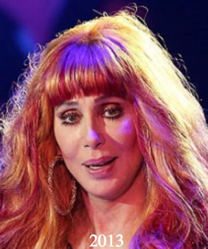 Cher Plastic Surgery Before and After Photos