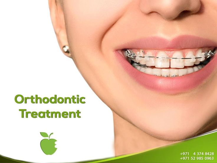 Orthodontics Treatment   One of the first things people notice about you is your smile and how your teeth look.     While orthodontic therapy is admittedly easier with a younger patient, you are never too old to begin orthodontics.    Orthodontics can make a dramatic improvement to your appearance, your life, and how you feel about yourself.  http://americanmdcenter.com/services/orthodontic-treatment/  ----------------------  Ask now!  Call us NOW  +971 4 374 8428  #AMDC #Dental_clinic…