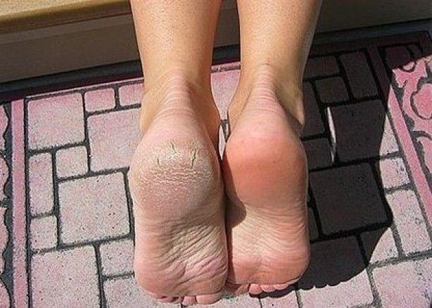 Voetenbad vol met water en zout toevoegen en zout laten oplossen daarna je voeten 30 minuten laten weken. Daarna met een tandenborstel overig huid weghalen en met een handdoek je voeten drogen. Zie resultaat.