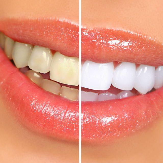 Que lindo es sonreir con dientes blancos ¿Quieres tener dientes blancos? entonces tienes que leer esto